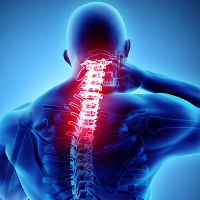Let a Chiropractor Help You Understand the Cause of Your Kyphosis